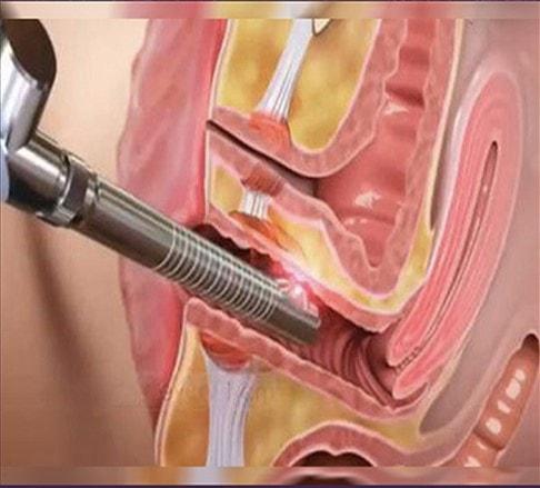 درمان فیستول با جراحی