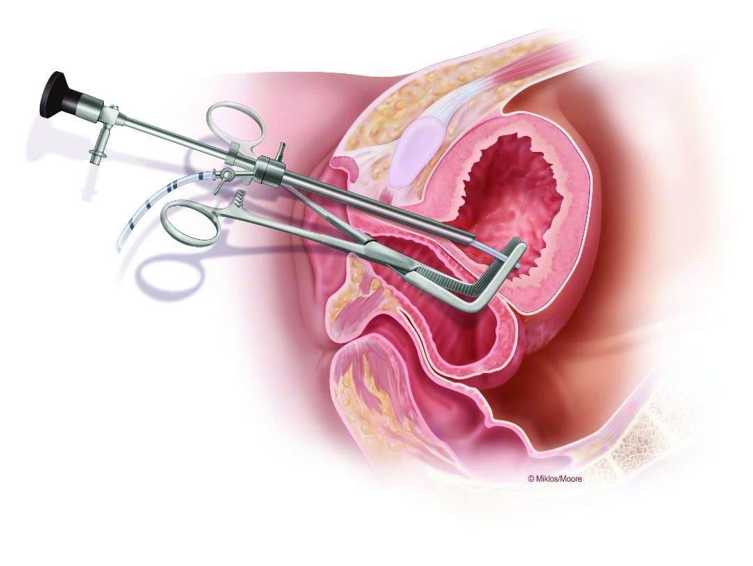 جراحی فیستول